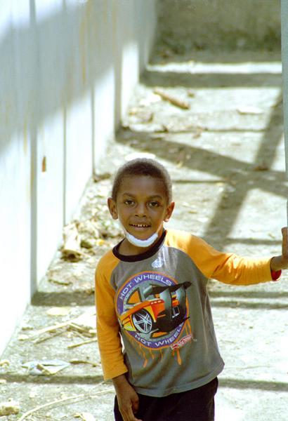 This young boy didn't let a bad infection of the chin stop him from making the most of the day.