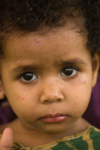 This little girl's solemn expression never changed. I suspect that her recent case of chicken pox really took the wind out of her sails. I know I've never seen a more mournful child in all my time in Vanuatu.